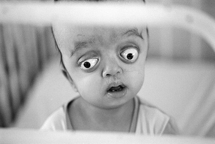 VIETNAM. Ho Chi Minh City. Girl affected by Agent orange born in May, 2000 and left at the Tu Du Hospital by her parents. She was never given a name. Her condition, craniofacial dysostosis, is a feature of Crouzon's syndrome. 2004.