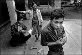 Cam Nghia, VIETNAM. 1998. Pham Hong Quy, 24, has several epileptic fits a day. During the war his father was in the South where much Agent Orange was sprayed.