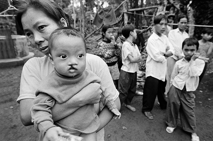 VIETNAM. Cam Nghia. Nine-month-old HOANG Huu Cung, was born with a harelip. His mother, LE Thi Ninh, and her husband, Hoang Huu Tich, spent the war together in Cam Nghia. Their two older children have no abnormalities. 1998