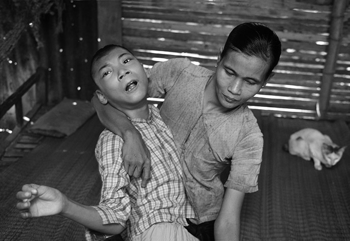 VIETNAM. VO Van Trac with his mother MAI Thi Nghiem. Trac, born in 1969, exhibits symptoms similar to Minamata disease. He spends 24 hours a day on a wooden bed behind the house. His legs are twisted and only half-developed. He writhes and grimaces ceaselessly. The muscles in his arms and body are in constant tension. His fingers have been bent back so far by spasms that they appear double-jointed. He is unable to talk. 1998