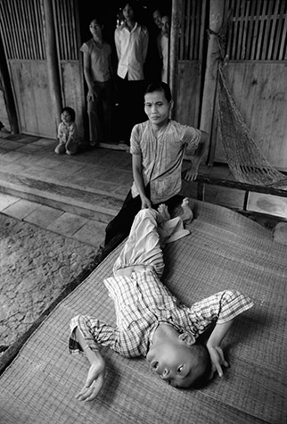 VIETNAM. VO Van Trac with his mother MAI Thi Nghiem. Trac, born in 1969, exhibits symptoms similar to Minamata disease. He spends 24 hours a day on a wooden bed behind the house. His legs are twisted and only half-developed. He writhes and grimaces ceaselessly. The muscles in his arms and body are in constant tension. His fingers have been bent back so far by spasms that they appear double-jointed. He is unable to talk. 1985
