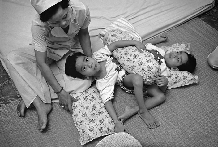 VIETNAM. Ho Chi Minh City. NGUYEN Viet-Duc, born at Gia Lai, Kontum, on February 25, 1981. They were conjoined at the pelvis, with one anus, one penis, one urinary tract, one bladder, two kidneys, and three legs. They are one of the many sets of Siamese twins at the Tu Du Hospital. These boys are seven years old and Viet (on right) is brain dead. They were eventually separated by a team of Japanese doctors. 1987