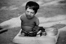 CAMBODIA. Phnom Penh. Pheak, twelve years old, is from the eastern province of Prey Veng. He was brought to the city by his parents to beg. Armless and legless, he is fed and cared for by his brother. 1995