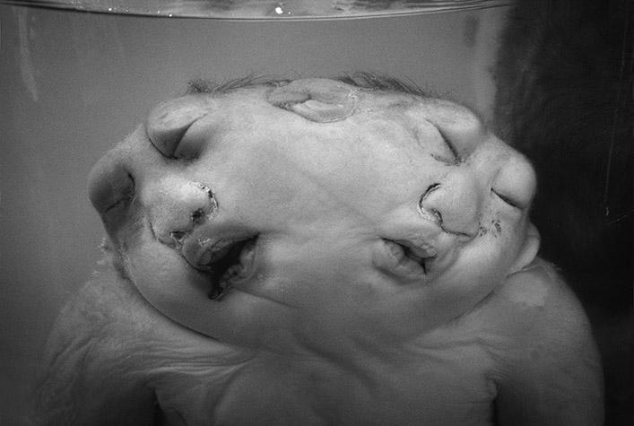VIETNAM. Ho Chi Minh City. Deformed fetuses preserved in formaldehyde at the Tu Du Hospital. 1980
