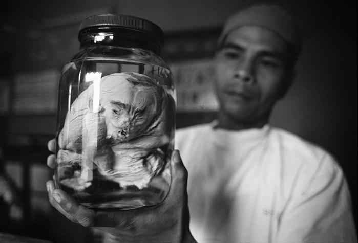 VIETNAM. Ho Chi Minh City. Deformed fetuses preserved in formaldehyde at the Tu Du Hospital.1998