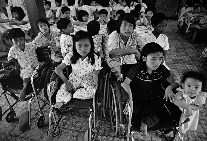 VIETNAM. Ho Chi Minh City. Three siblings exhibiting classic teratogenic symptoms, double elbows and knees on each limb, at Orphanage No. 6. They had been abandoned by their mother in the nearby Tu Duc Forest. 1988