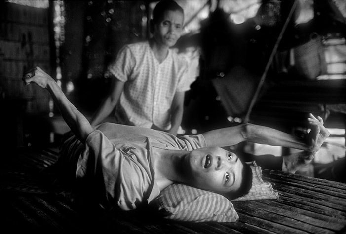 VIETNAM. VO Van Trac, at 26, being looked after by his mother, MAI Thi Nghiem. After ten years his condition has not changed. 1994.