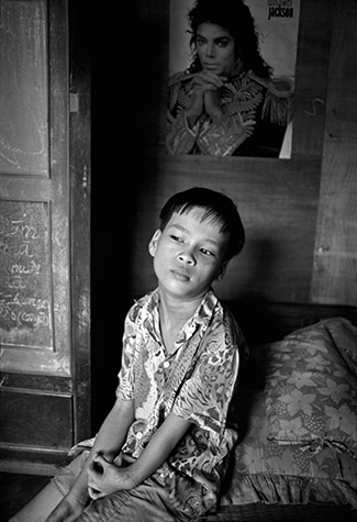 VIETNAM. Uyen Hung village. VO Trong Thuy, 13, lives in a wood and straw mat hut behing a pagoda. Thuy was born with his arm permanantly locked against his shoulder and the fingers and thumb of his hand frozen together. After multiple operations in Germany, his arm now works almost normally, and he can use the fingers and thumb of his hand. Thuy's hamlet was not sprayed directly with Agent Orange, but the family took drinking water that came from a canal leading to a nearby contaminated river. 1994