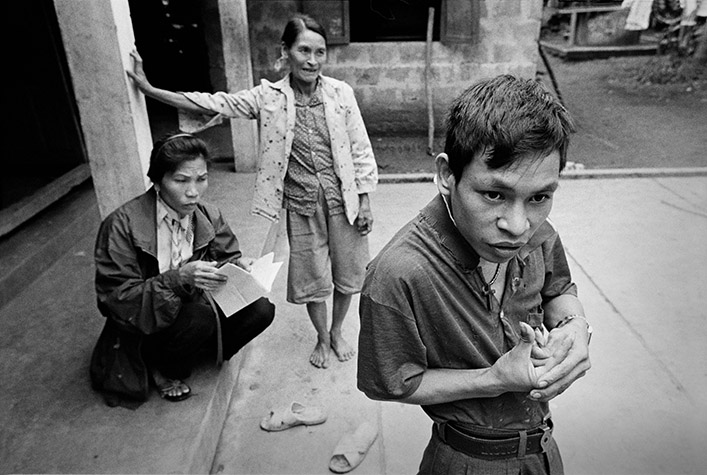 VIETNAM. Cam Nghia. PHAM Hong Quy, 24, has several epileptic fits every day. He has a dysfunction of his right hand and left leg. His mother, PHAN Thi Thao, looks on as the village health volunteer LE Thi Binh (on left) makes her weekly visit. 1998