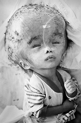 VIETNAM. Ho Chi Minh City. Baby without a name who was brought from Vinh Long Province to the Tu Du Hospital by her mother, Dang Thi Hong Khuyen. She was born with hydro-encephalitis, and died one month after this photograph was taken. 2002